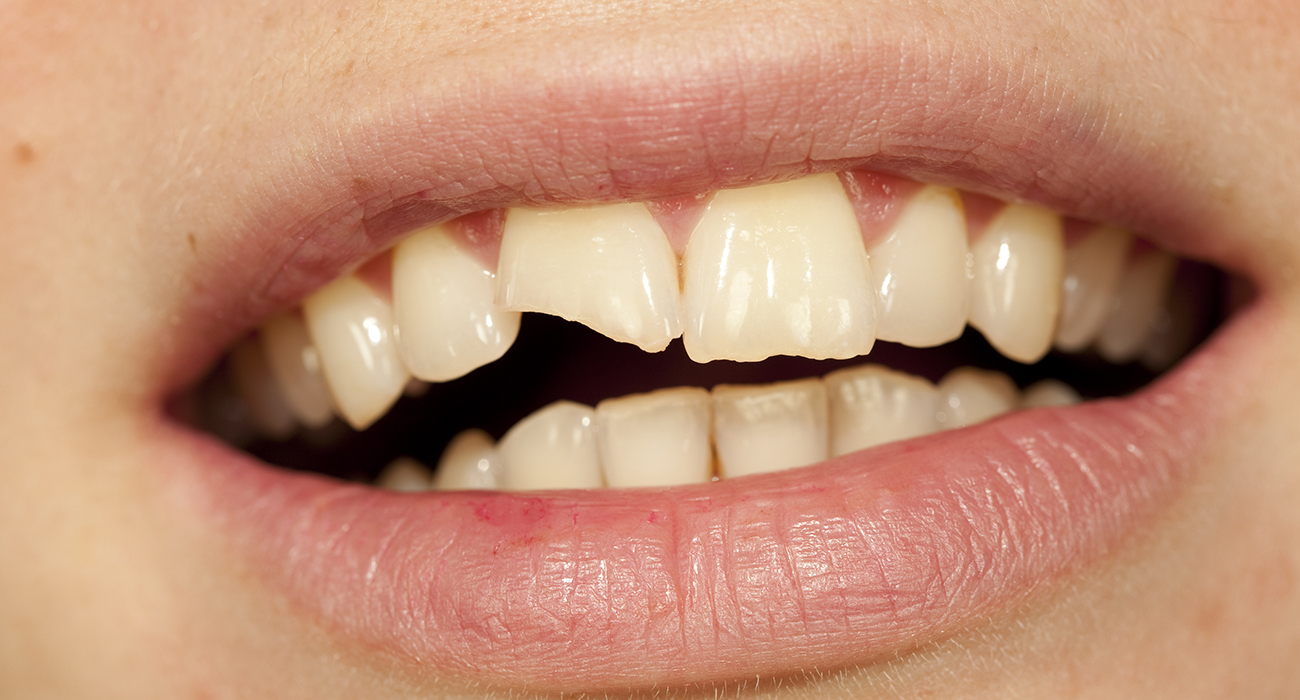 Emergency Dentist 24/7 Mount Prospect close up of persons mouth showing a cracked tooth - Emergency Dental Service Houston 77001