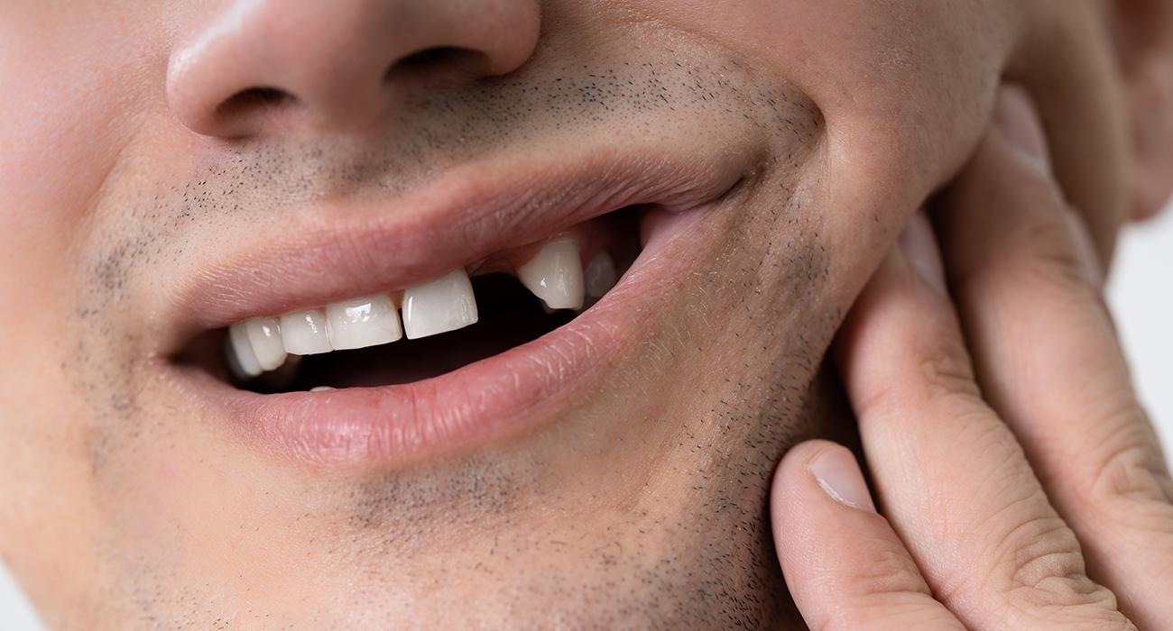 Emergency Dental Care Fresno