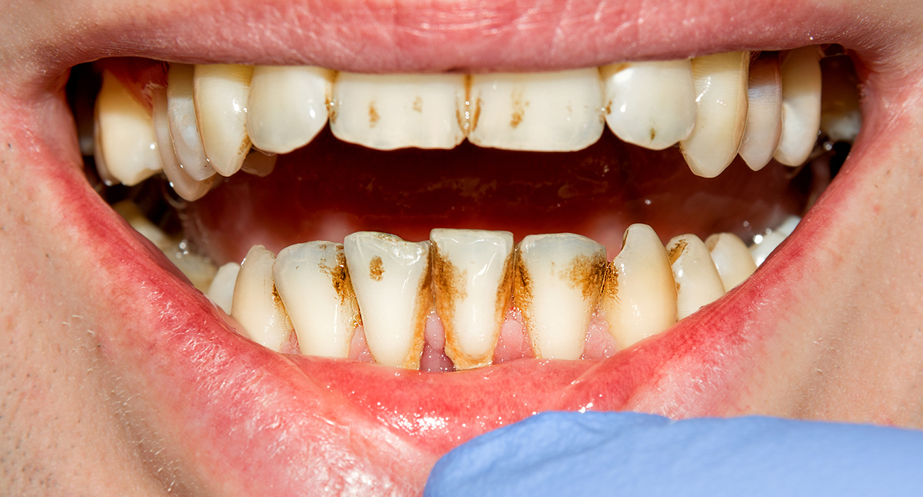 Emergency Dentist Columbus close up of persons mouth with plaque and other damages from not caring for their teeth