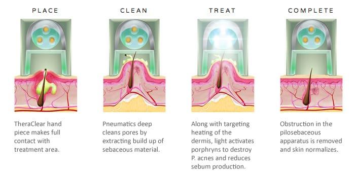 Laser Vacuum Acne Treatment