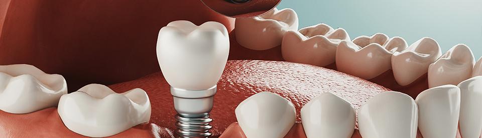 Dental Implants and Dentures